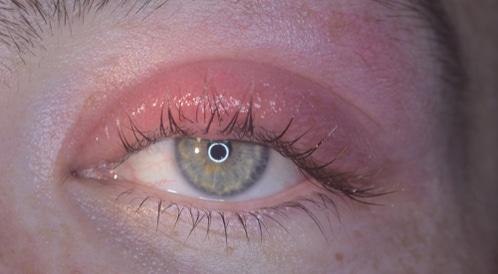 التهاب جفن العين حالة مزعجة جد ا ويب طب