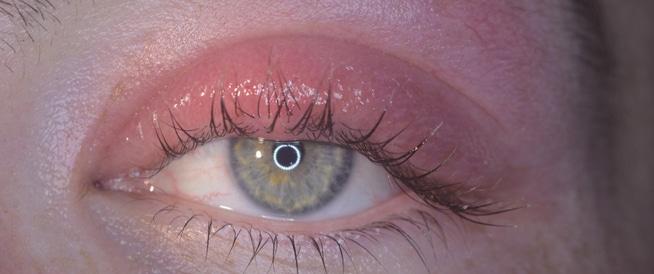 التهاب جفن العين: حالة مزعجة جداً