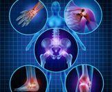 12 علاجا طبيعيا للمفاصل