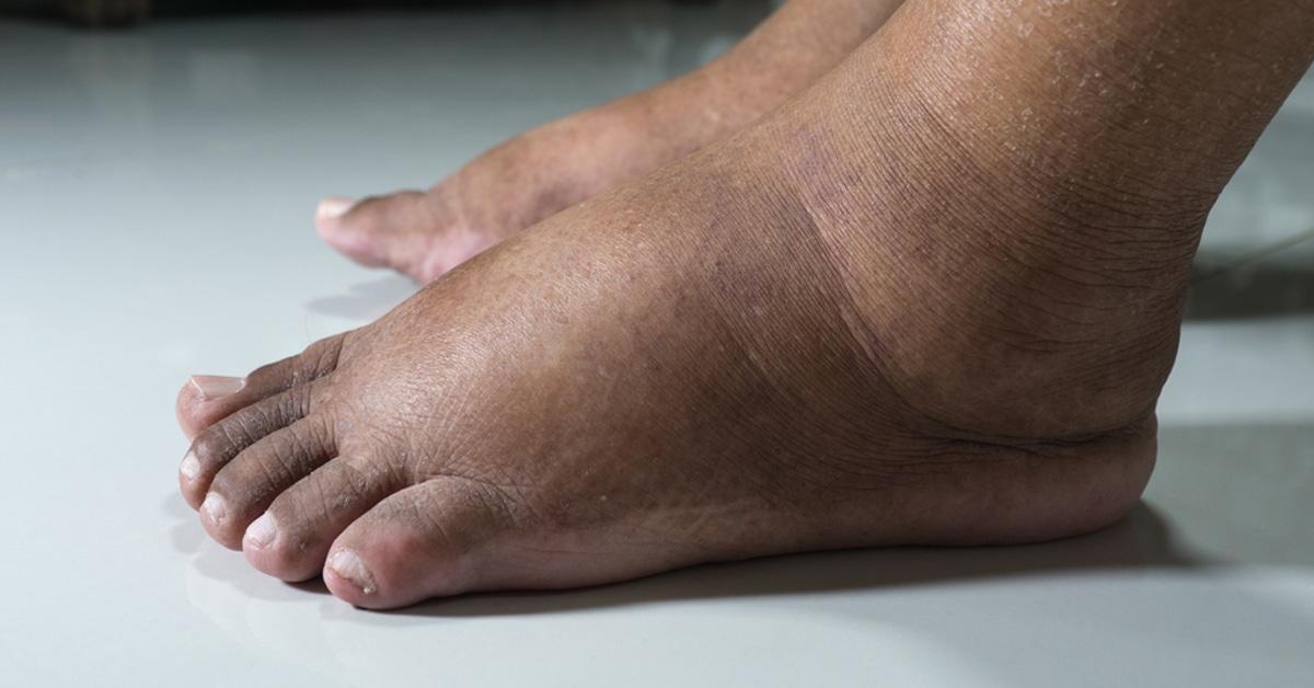 اسكتلندي قلادة عمق علاج انتفاخ القدم اليسرى Autofficinall It