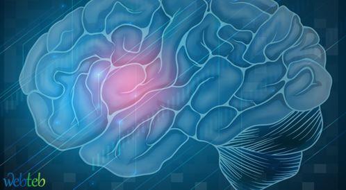 إعادة التأهيل بعد السكتة الدماغية: أسئلة وإجابات!