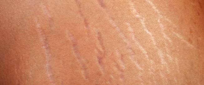 علاج تشققات الجلد وعلامات تمدده