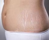 تشققات الجلد وعلامات تمدده
