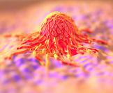 إطالة عمر مرضى السرطان النقيلي!