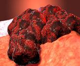 بعض الخرافات عن سرطان الرئة!