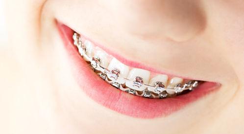 اعادة تقويم الأسنان: التيجان أم زراعة الاسنان؟