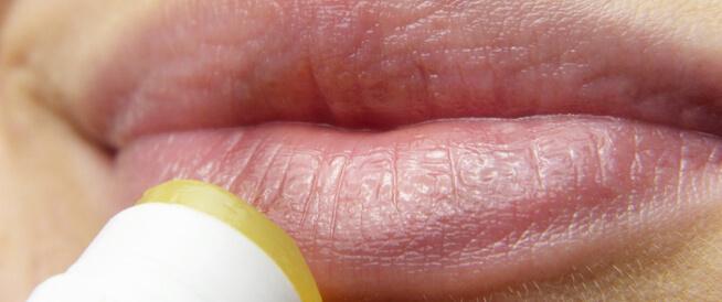 فيروس الهربس: هل يمكن التخلص منه؟