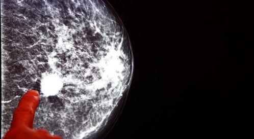 التكنولوجيا المتقدمة والاكتشاف المبكر لسرطان الثدي