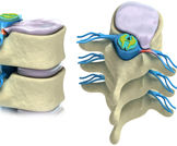 أمراض العمود الفقري المرتبطة بالعمر