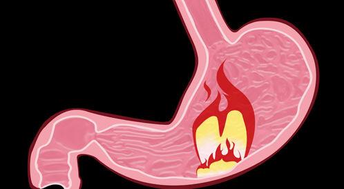 ما هي اعراض التهاب المعدة؟