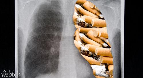 ألم بالصدر بعد ترك التدخين