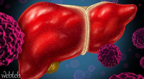 سرطان الكبد انعكاس لعدد من الأمراض الصحية المنتشرة في مصر