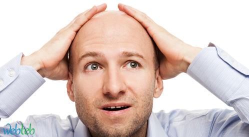 مواجهة الصلع: قصات شعر قصير للرجال