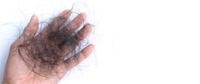 علاج تساقط الشعر: أهم القواعد والخطوات