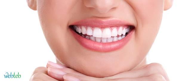 تلبيسة الأسنان الجزئية وابتسامة المليون دولار