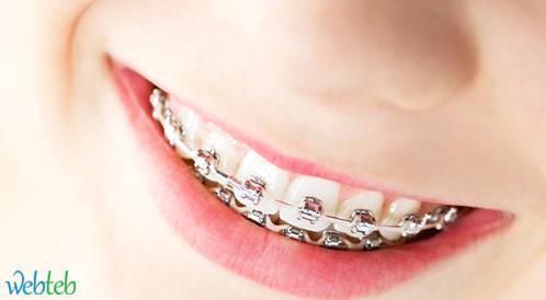 الدعامات السنية وتقويم الأسنان