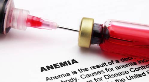 فقر الدم الناجم عن نقص الحديد