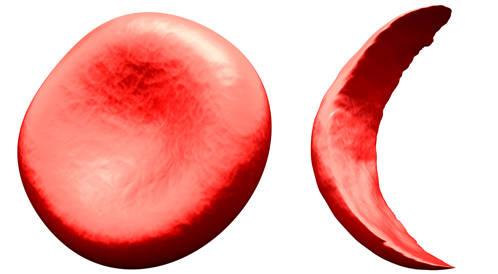 تعليمات هامة حول فقر الدم المنجلي عند الاطفال
