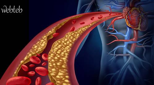الكولسترول السيء وعوامل الخطورة الاخرى لتصلب الشرايين