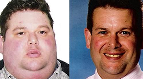 """فقدان الوزن: """"كنت أعلم أنّي بحاجة للتغيير"""""""