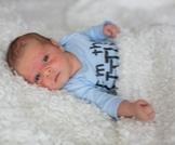 الطفح الجلدي عند الرضع