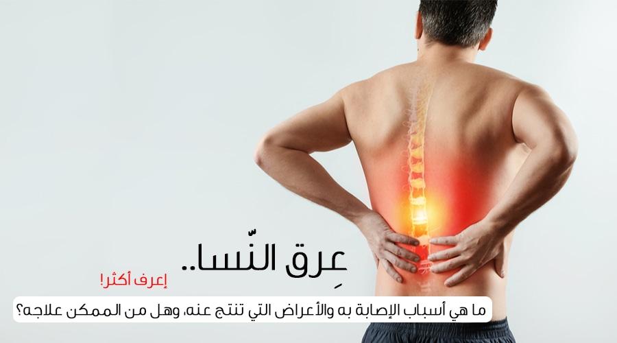 25cac3a27857e علاج عرق النسا وأعراض الإصابة والأسباب - ويب طب