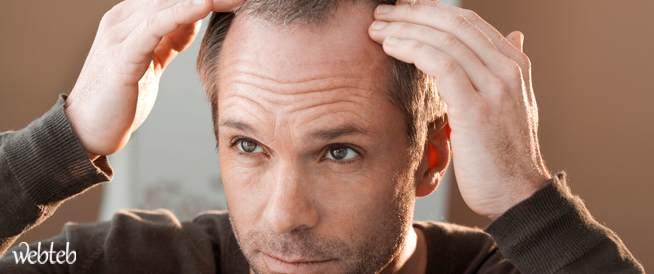 الأطباء يعتبرون قشرة الرأس ليست مرضاً خطيراً