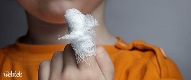 وسائل منزلية لعلاج الخدوش والجروح