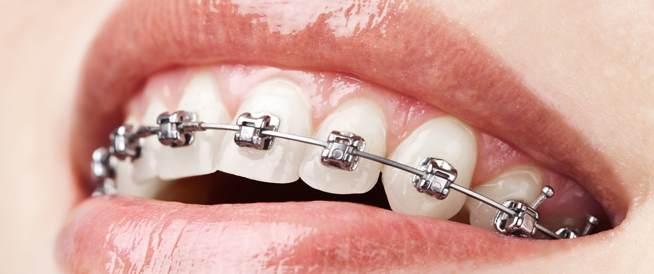 تقويم الأسنان التجميلي والعلاجي