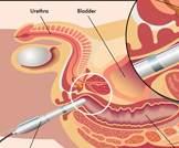 علاج تضخم البروستاتا الحميد