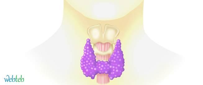 تشخيص وعلاج أورام الغدة الدرقية