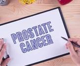 حول سرطان البروستاتا