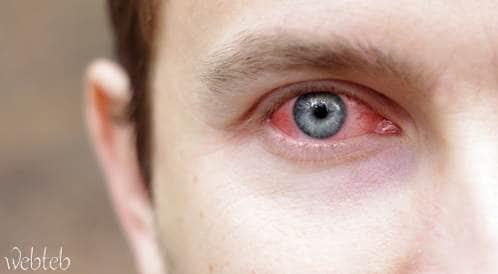ماذا تعرف  عن التهاب الملتحمة الربيعي؟