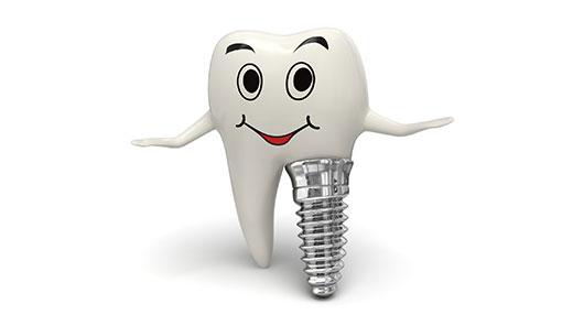 ست نصائح حول عملية زراعة الأسنان