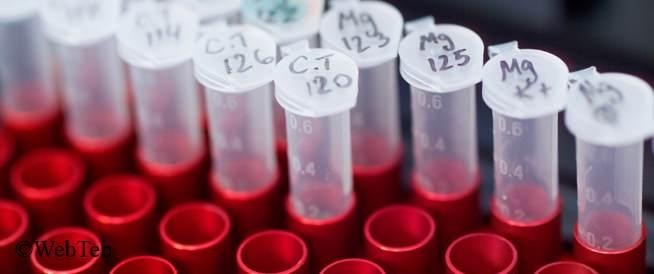 اختبار المرض المنقول جنسيًا: ما الأفضل بالنسبة لك؟