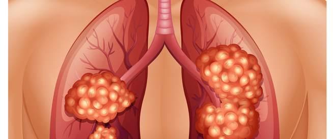 ما هي المرحلة الثالثة من سرطان الرئة؟