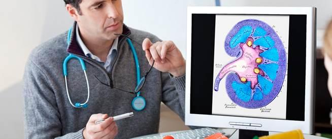 خمسة أعراض قد تكون مؤشر على الإصابة بسرطان الكلى