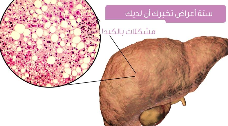 ستة أعراض قد تدل على مشاكل الكبد ويب طب
