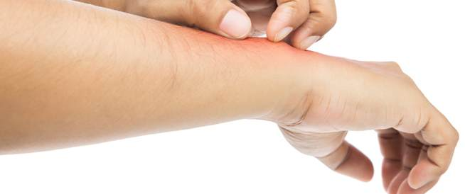 3ebfbf94e هذه هي أسباب الطفح الجلدي على المعصمين - ويب طب