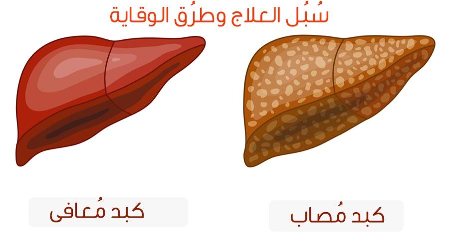 علاج دهون الكبد بطرق مختلفة ومتنوعة ويب طب