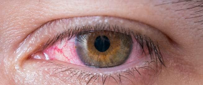 دليلك الكامل لاحمرار العين