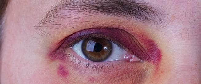 عيون الراكون: مشكلة صحية غريبة