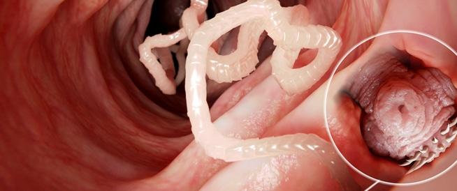 أسباب وأعراض الإصابة بالدودة الشريطية وطرق العلاج