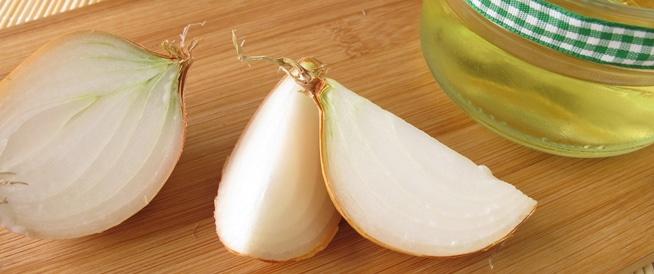 عصير البصل: حل لتساقط الشعر؟