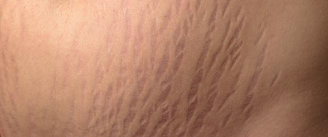 تشققات الجلد على الثدي