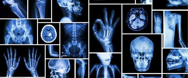 الأشعة السينية ما بين الفوائد والمخاطر