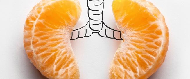 سرطان الرئة: تجنب هذه الأطعمة كي تقلل من فرص الإصابة!