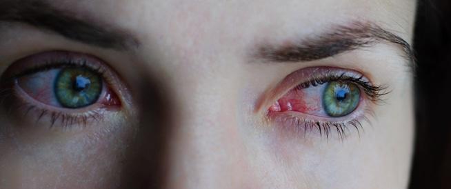 إحمرار العين: إليك 8 أسباب