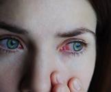 إحمرار العين