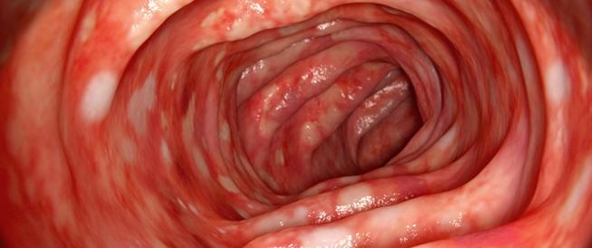 التهاب القولون الأيسر: اعراض، اسباب وعلاج